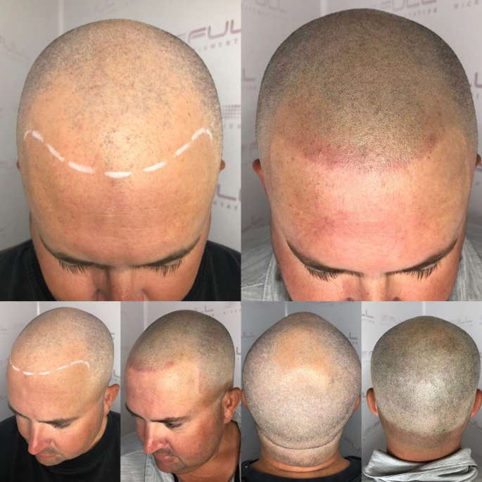Hair Transplant Alternative in Las Vegas