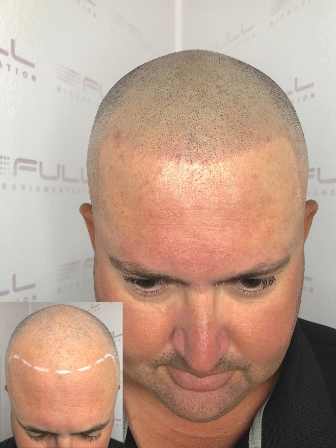 scalp micropigmentation before and after photos